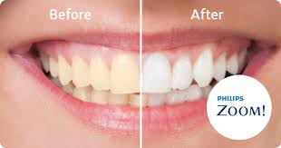 Professional teeth whitening with Zoom. Fast, easy, safe in-office procedure lets you walk out with a dazzling white smile.